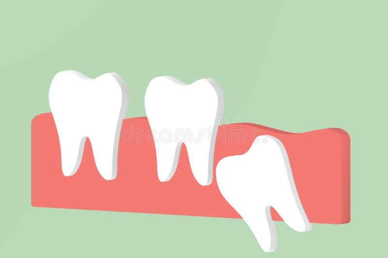 Eckiger oder mesial Impactionsaffekt des Weisheitszahns zu anderen Zähnen stock abbildung
