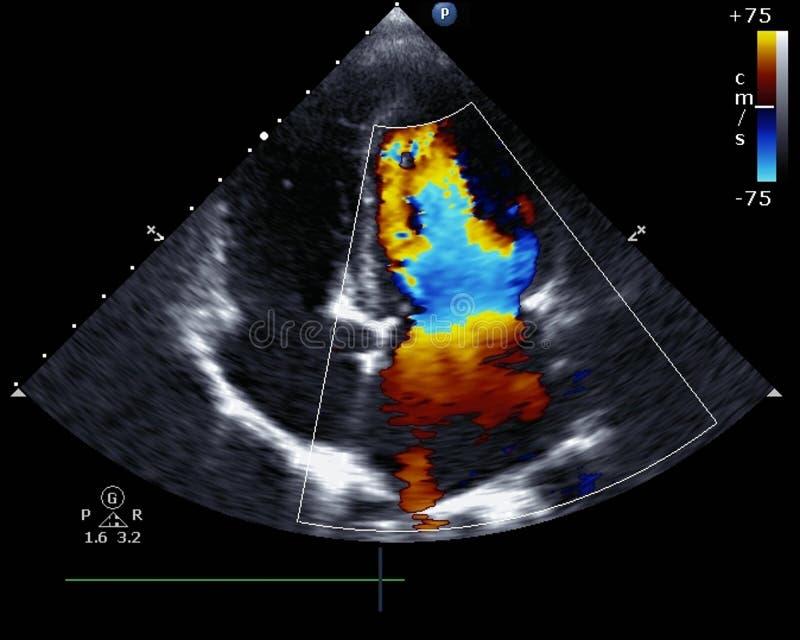Ecocardiografia di doppler fotografie stock