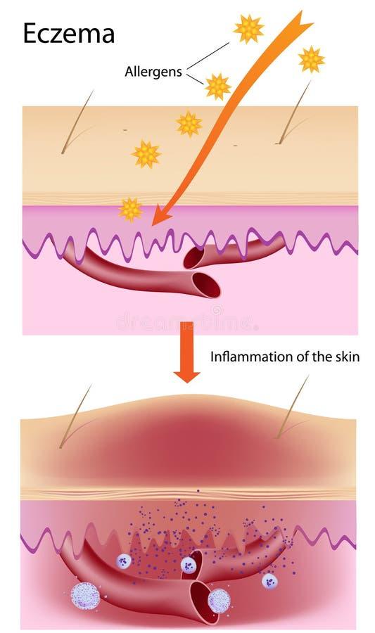 Eczema ilustração royalty free
