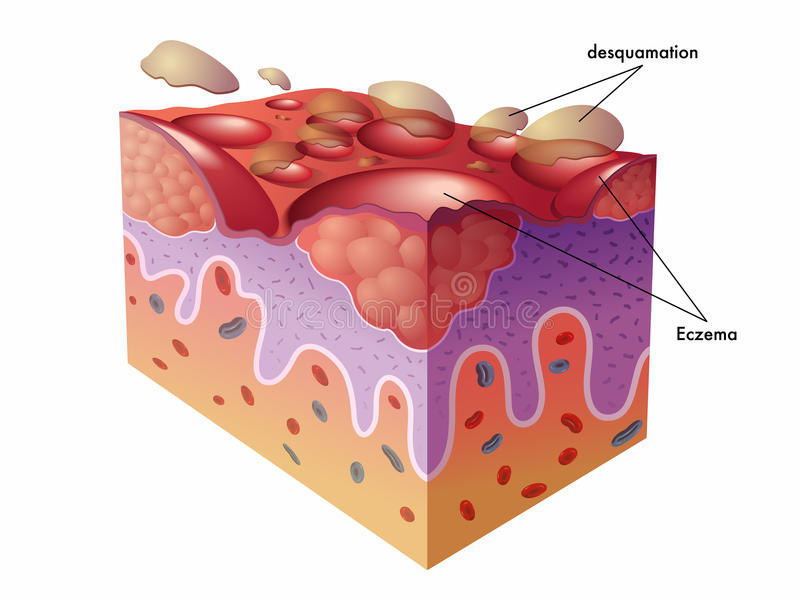 eczema иллюстрация штока