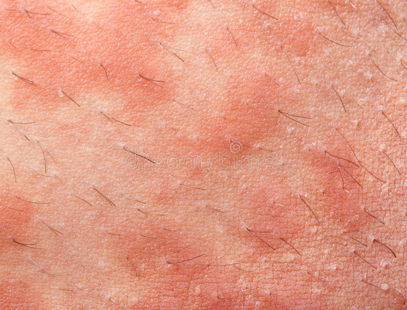 Eczema atopic dermatitis stock foto
