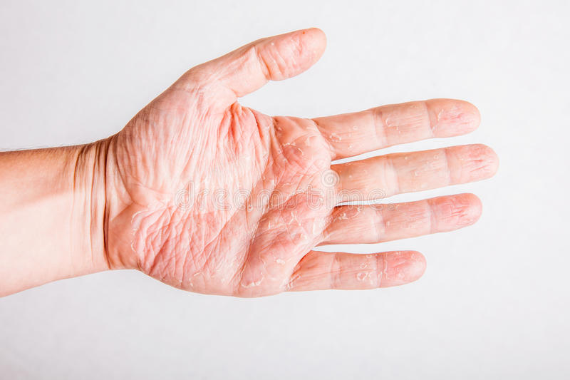 Eczema Atopic Dermatitis Symptom Skin Texture Stock Photo ...