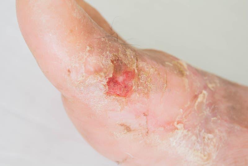 Eczema de la diabetes en mujeres mayores fotos de archivo