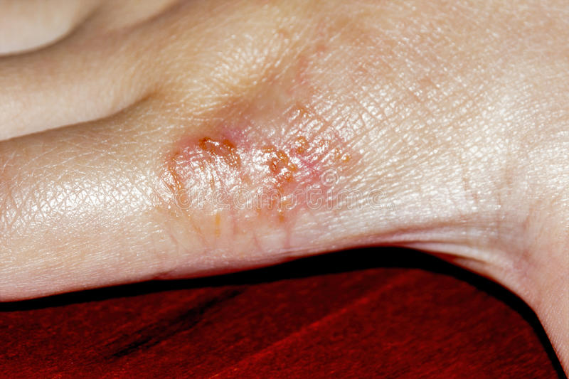 Eczema de la piel fotos de archivo libres de regalías
