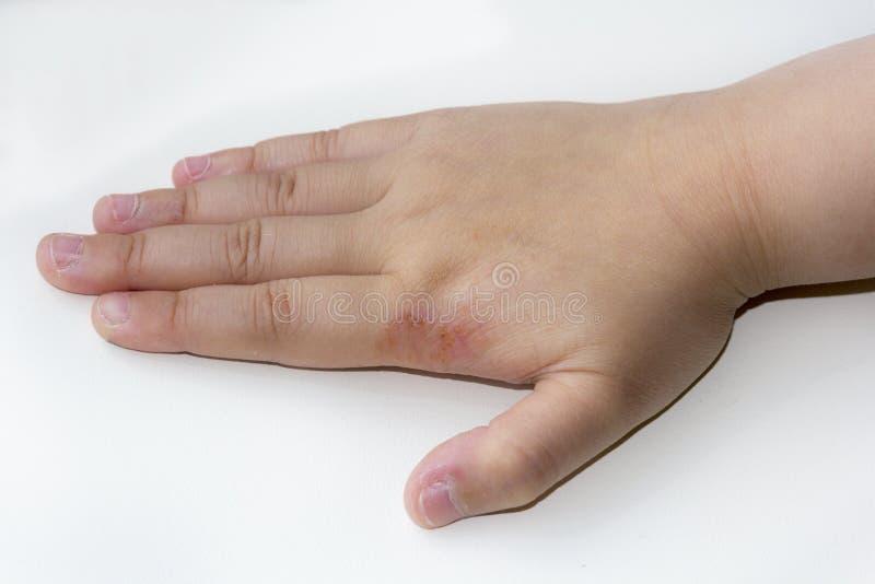 Eczema de la piel fotos de archivo