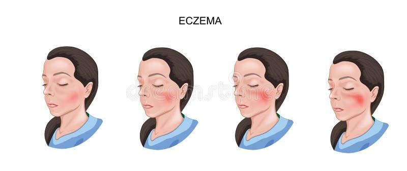Eczema del daño de la piel libre illustration