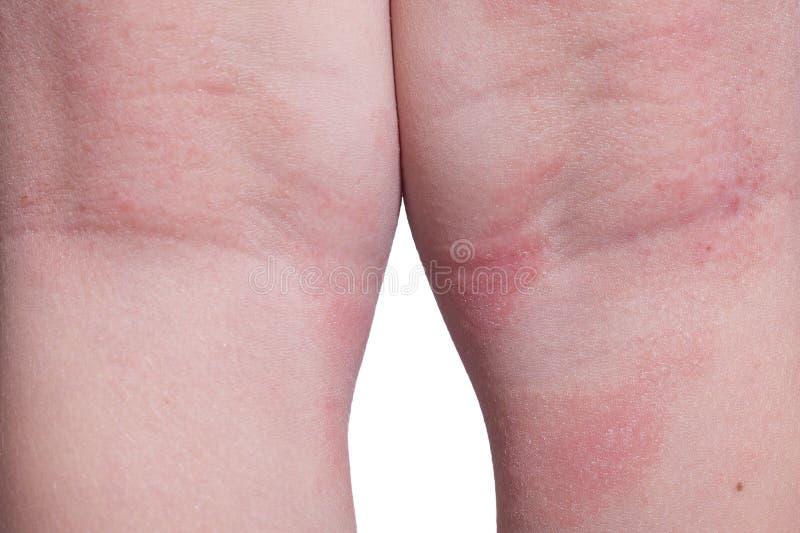 Eczema nos pés da criança imagens de stock royalty free