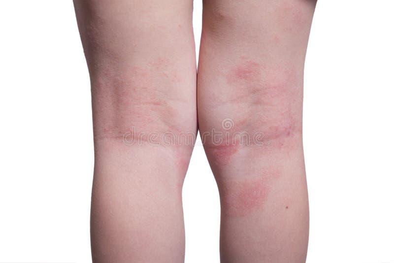 Eczema nos pés da criança foto de stock