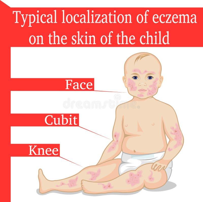 Eczema pour un enfant illustration de vecteur