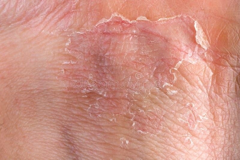 Eczema su pelle immagini stock