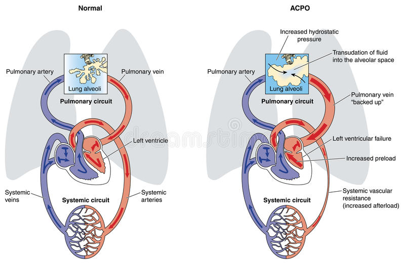 Edema polmonare cardiogenico acuto illustrazione di stock