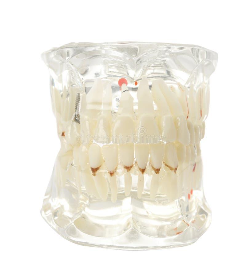 Edukacyjny model oralny zagłębienie z zębami na bielu obraz royalty free