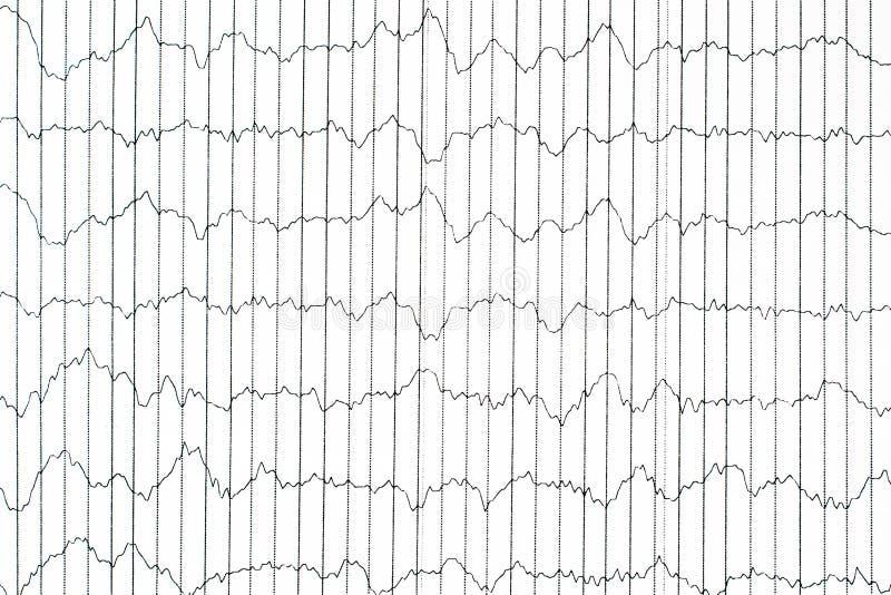 EEG elektrobiologische controlemethode EEGgolf in menselijke br stock foto's