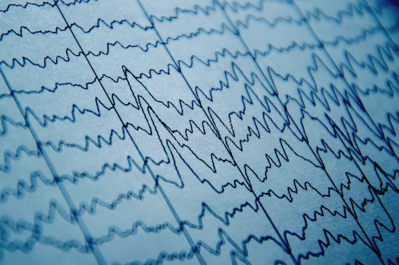 EEG fala w ludzkim mózg, móżdżkowi falowi wzory na elektroencefalogramie, problemy w elektrycznej aktywności mózg obrazy royalty free