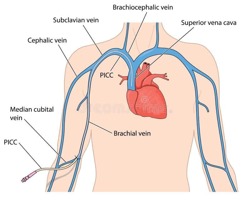 Een aan de rand opgenomen centrale catheter stock illustratie