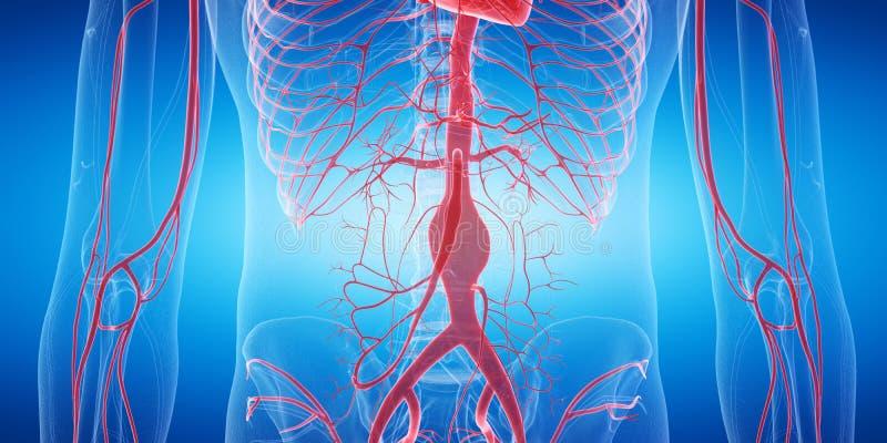 Een aneurisma vector illustratie