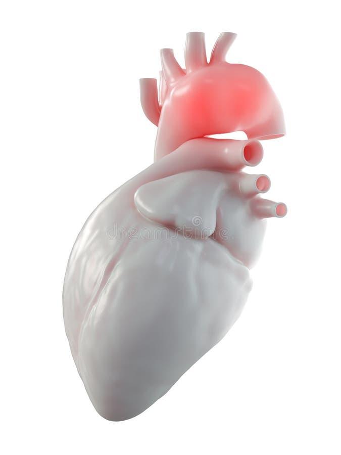 Een aortaaneurisma stock illustratie