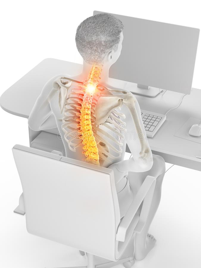 Een beambten pijnlijke rug vector illustratie