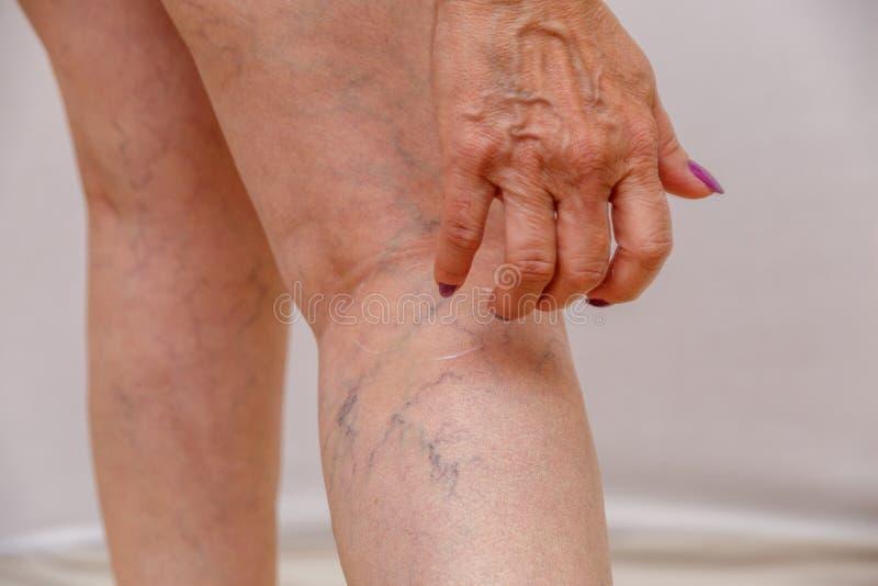 Een bejaarde smeert room op haar benen op een licht geïsoleerde achtergrond concept voor geneeskunde en de kosmetiek stock foto