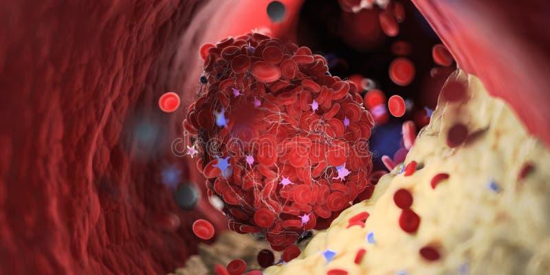 een bloedprop vector illustratie