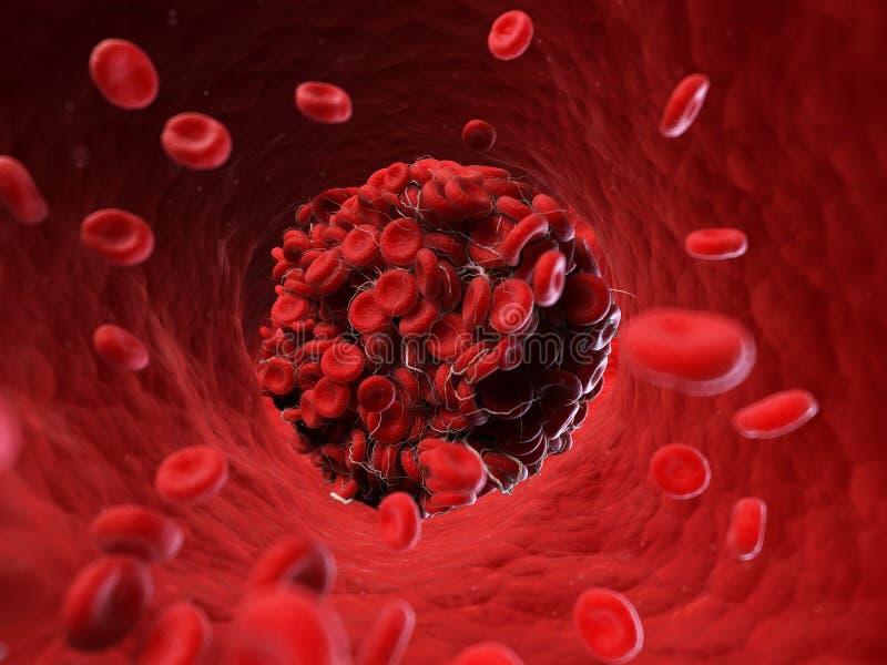 Een bloedstolsel vector illustratie