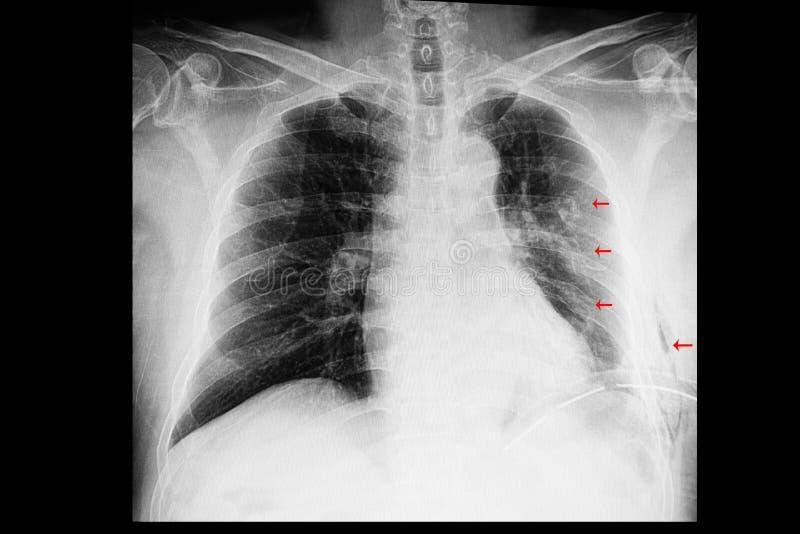 een borströntgenstraal van een patiënt met ribbreuken en borstvliesuitstroming en onderhuidse emfyseem stock afbeeldingen