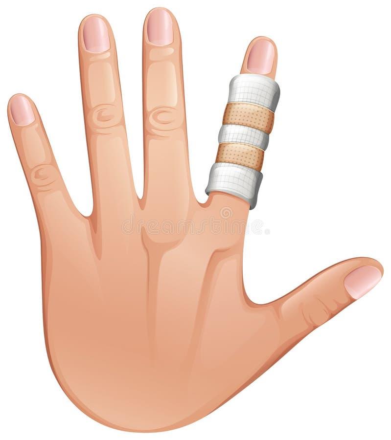 Een eerste hulpbehandeling op een vinger stock illustratie