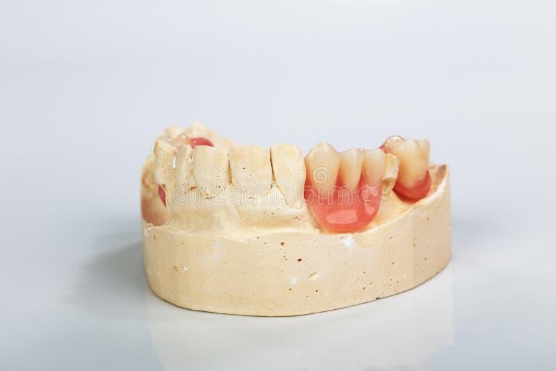 Een gedeeltelijk gebit opgezet op een model van de pleisterstudie royalty-vrije stock fotografie