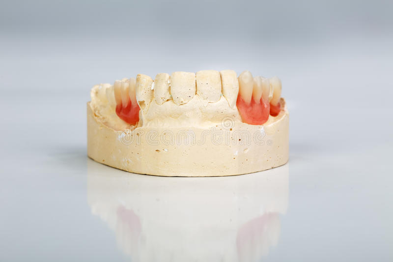 Een gedeeltelijk gebit opgezet op een model van de pleisterstudie stock afbeelding
