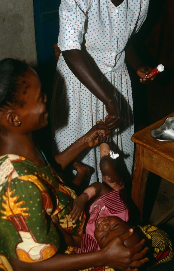 Een Gewond Kind In Een Gezondheidscentrum In Burundi. Redactionele Afbeelding
