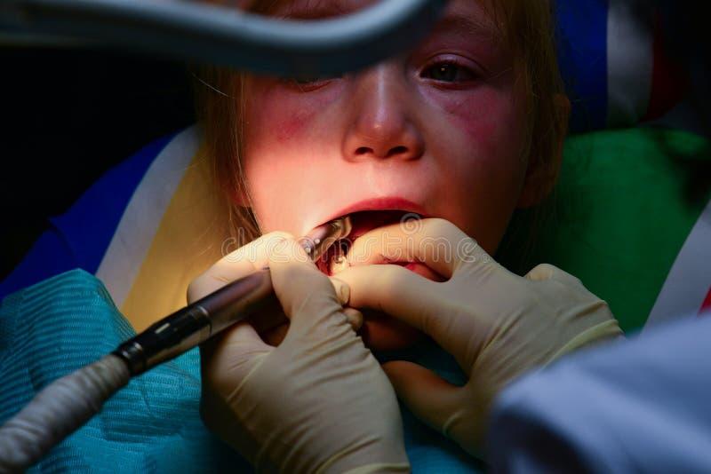Een klein meisje behandelt een tand bij een tandarts, de artsenboren en maakt de tand van het bederf door op te poetsen schoon stock fotografie