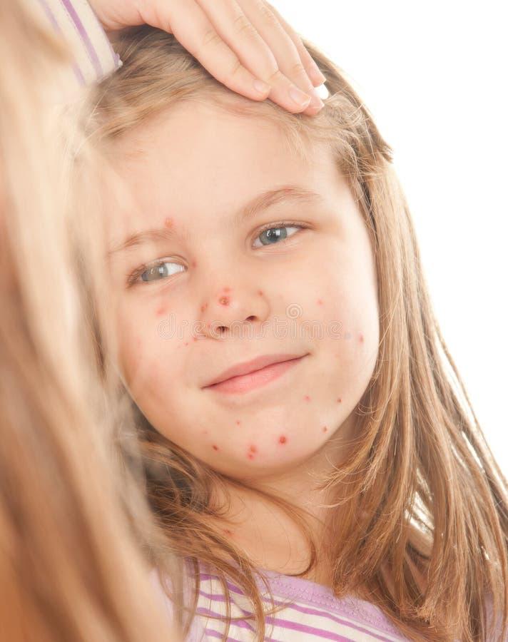 Een meisje dat aan varicella lijdt stock fotografie