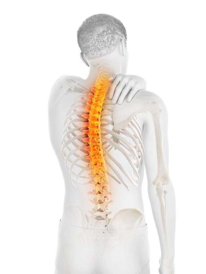 Een mens die een rugpijn hebben stock illustratie