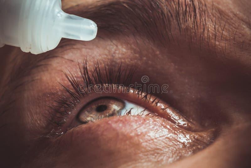 Een mens druipt open menselijk oog met heldere rode slagadersdalingen om visie dichte omhooggaand te verbeteren irritatie en rood stock fotografie