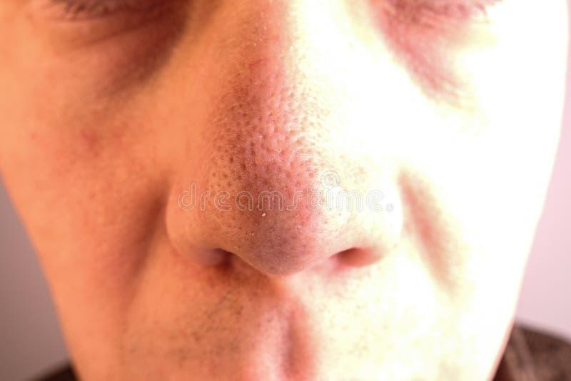 Een mens met grote poriën en meeëters op zijn neus stock fotografie