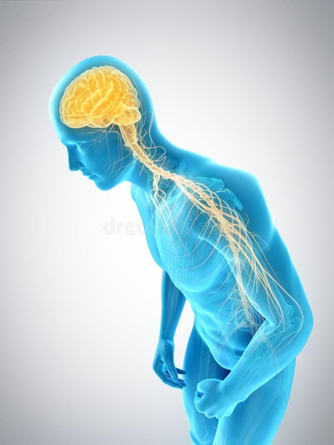 Een mens met Parkinson vector illustratie