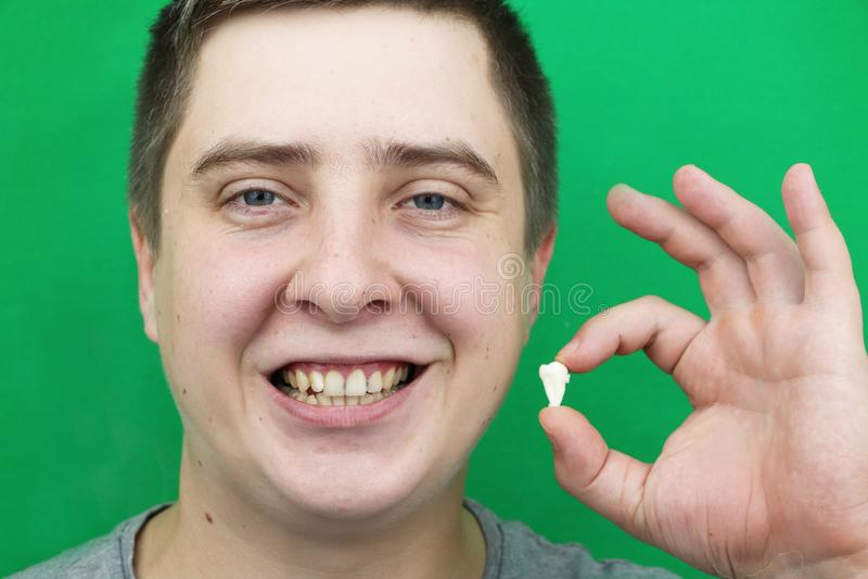 Een mens na het verwijderen van een verstandskies De verrichting om de achtste tanden te verwijderen stock fotografie