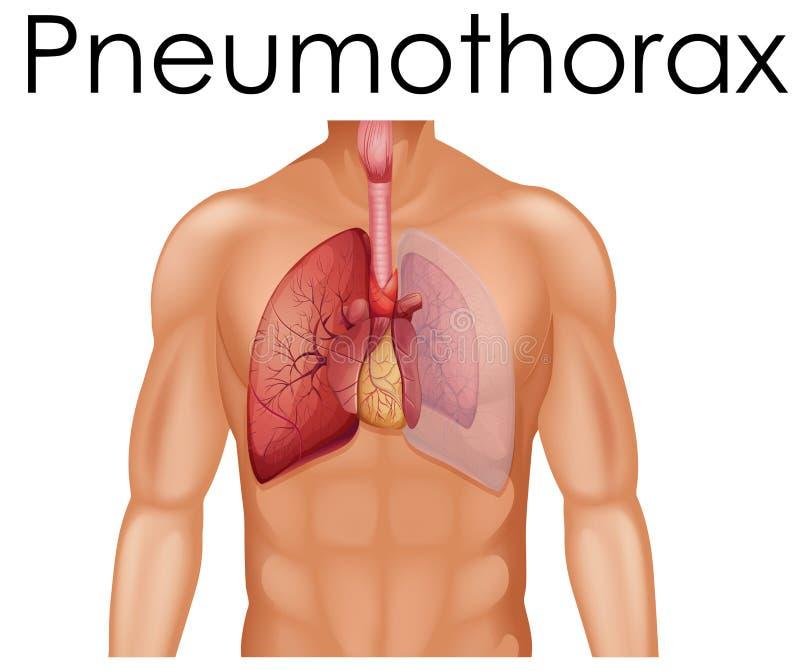 Een Menselijke Anatomie van Pneumothorax royalty-vrije illustratie