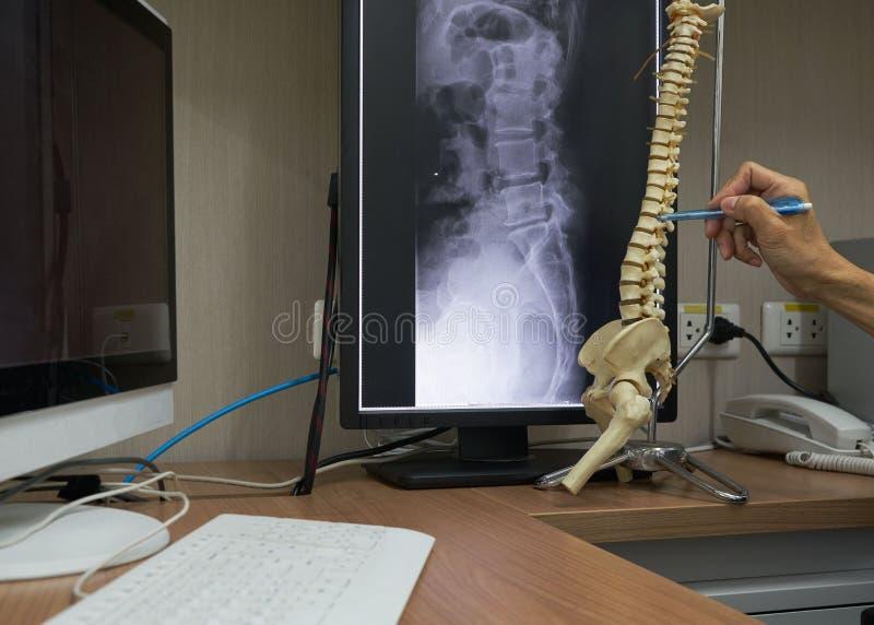 Een neurochirurg die op lumbaal ruggewervelmodel richten in medisch bureau royalty-vrije stock afbeeldingen