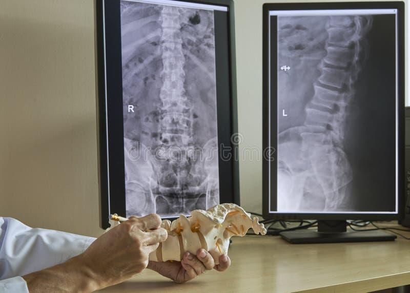 Een neurochirurg die op lumbaal ruggewervelmodel weg richten in medisch royalty-vrije stock foto's