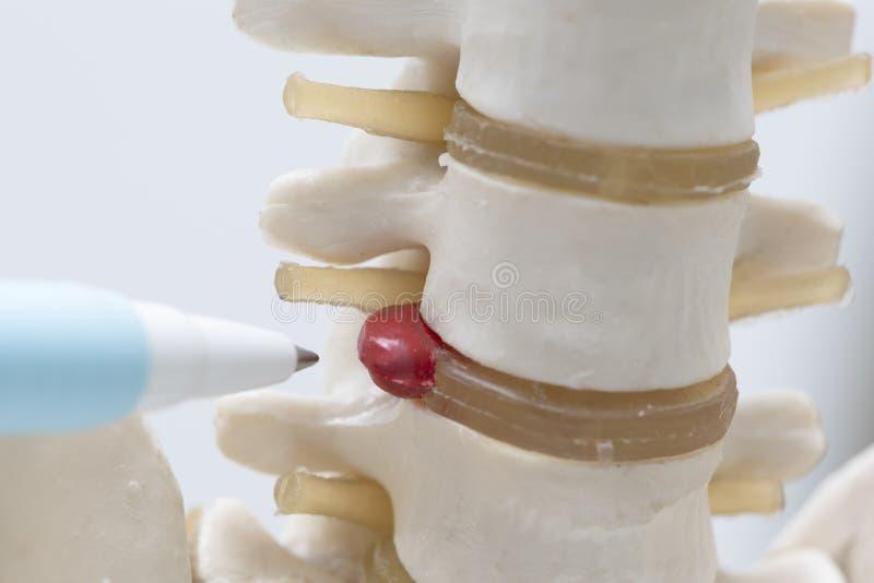 Een pen die op herniated lumbaal schijfmodel richten stock afbeeldingen