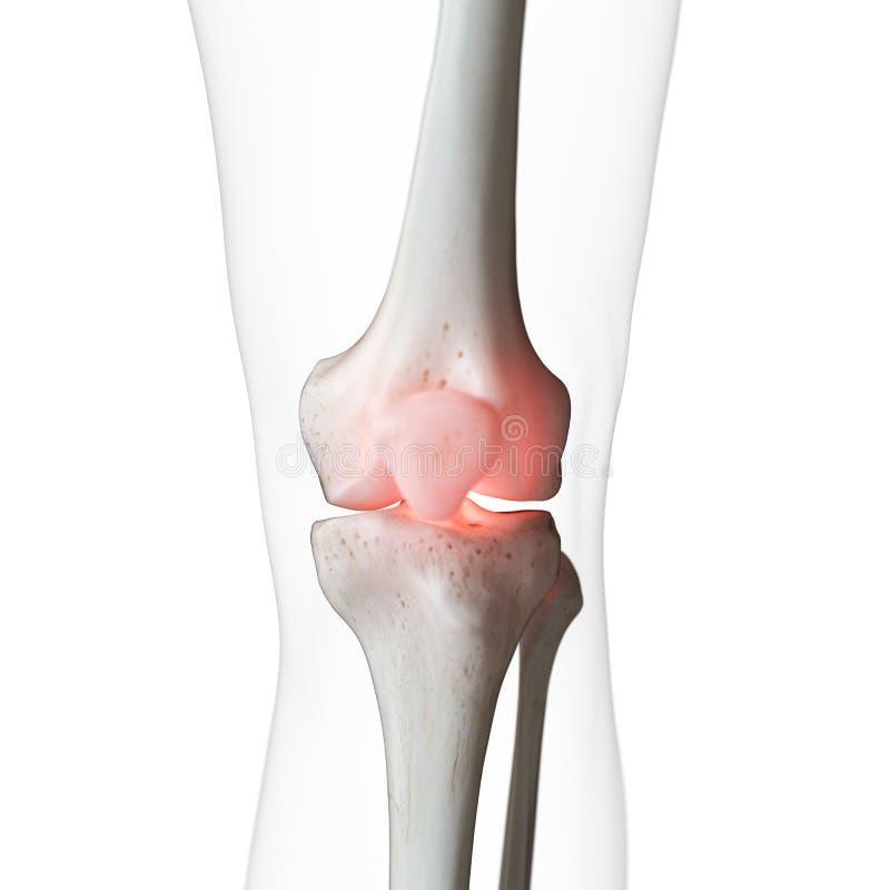 een pijnlijke knie vector illustratie