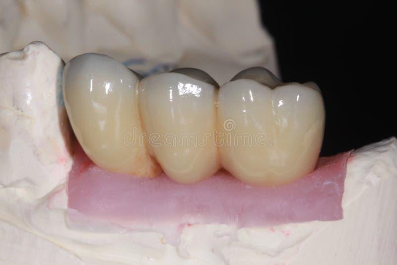 Een porseleinzekering aan metaal tandbrug met hoog doorschijnendheidsporselein wat nabootsen de natuurlijke tanden kleurt royalty-vrije stock foto's