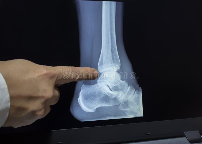 Een röntgenstraal van een hiel met een artsenhand stock foto's