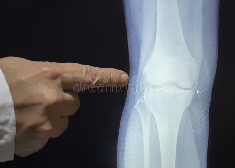 Een röntgenstraal van een knie met de hand van een arts royalty-vrije stock fotografie