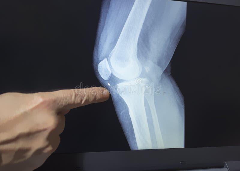 Een röntgenstraal van een knie met de hand van een arts stock afbeelding
