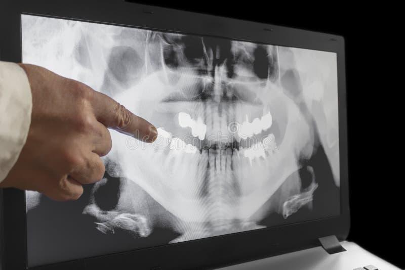 Een röntgenstraal van tanden met een hand van arts stock afbeeldingen