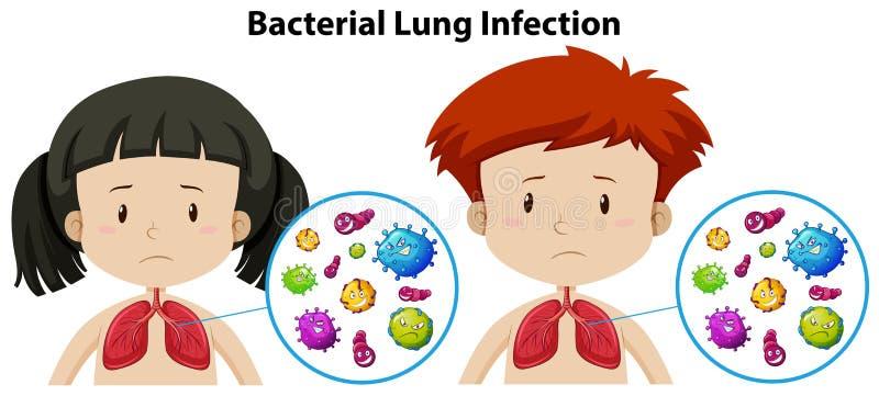Een Reeks van Bacterieel Lung Infection stock illustratie