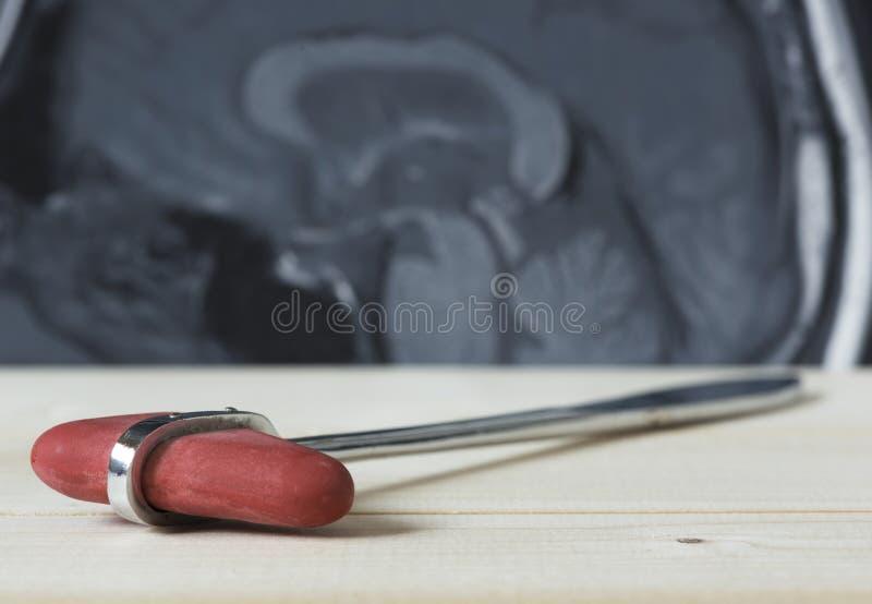 Een reflexhamer en een beeld van hersenen MRI royalty-vrije stock afbeelding