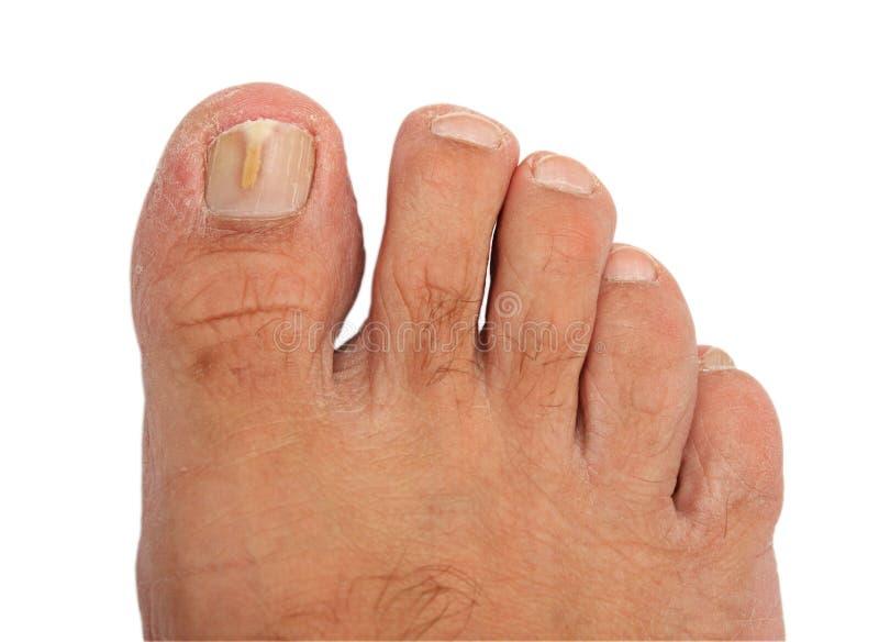 Een teennagel besmet met een paddestoel stock afbeeldingen